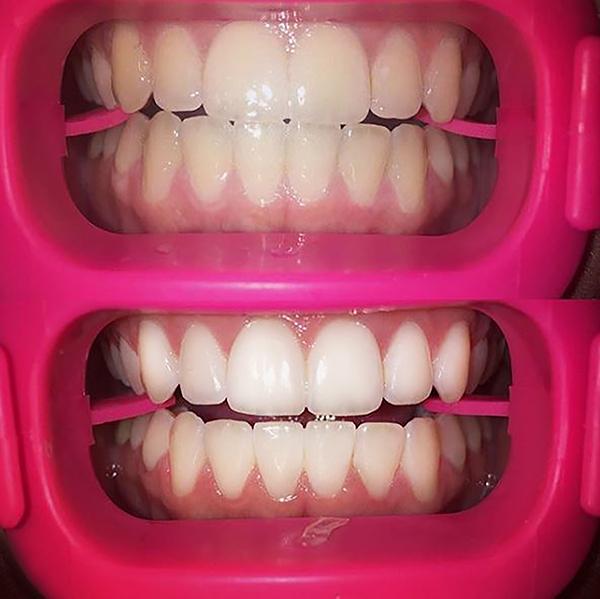 Home Twilight Teeth P6 Whitener
